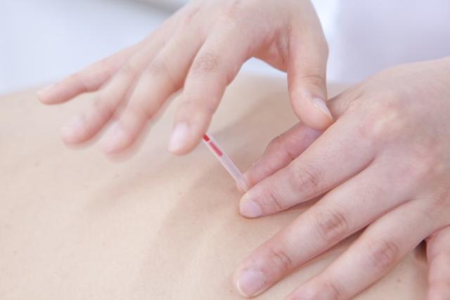 手技と鍼灸を合わせた施術で神経の圧迫を抑えて症状を改善します
